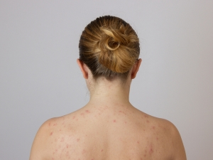 Best Treatment For Body Acne