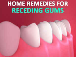 Home Remedies That Can Help You Grow Back Receding Gums
