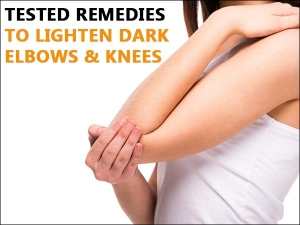 Tested Remedies To Lighten Dark Elbows And Knees