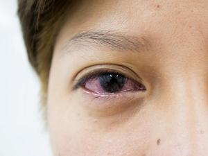 Surprising Causes For Bloodshot Eyes