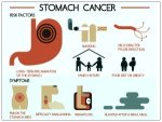 Facts About Stomach Cancer