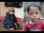 This Kid Had A Rare Disease Of Bleeding Eyes
