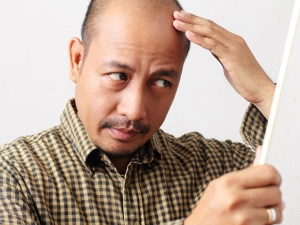 Bizarre Myths You Should Know About Hair Loss