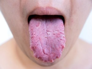 Harmful Things That Happen When You Do Not Brush Your Tongue!