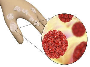Tips To Treat Human Papillomavirus (HPV) Infection Naturally At Home
