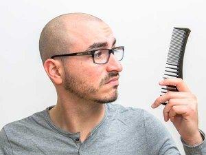 DIY Tips To Prevent Hair Fall & Baldness In Men