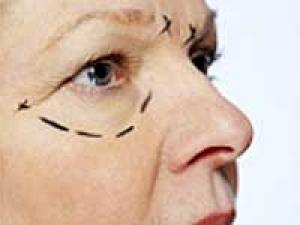 Divorced Brit Women Do Plastic Surgery To Woo Men - Boldsky com