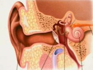 Hearing Loss Diabetes Audiometry