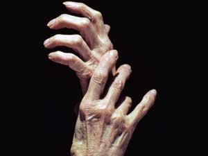 Arthritis Diet Food 160511 Aid