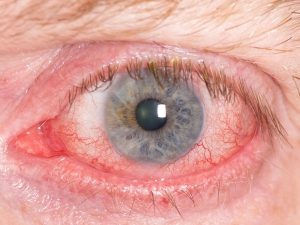Red Eyes Causes And Remedies
