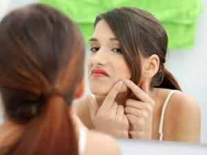 10 Acne Myths Unveiled