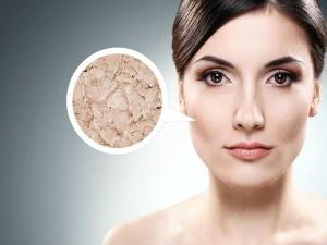 6 Effective Ways To Treat Dry Skin