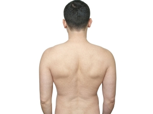 Remedies To Reduce Strech Marks On Back