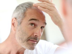 Interesting Facts About Baldness