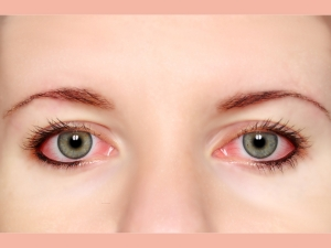 Allergic Conjunctivitis Most Common Eye Problem