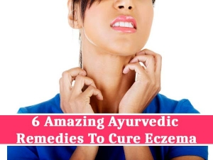 Six Amazing Ayurvedic Remedies To Cure Eczema