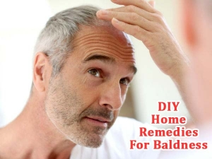 Diy Home Remedies For Baldness