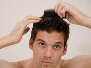Natural Tips To Prevent Male Pattern Baldness