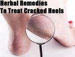 Herbal Remedies To Treat Cracked Heels