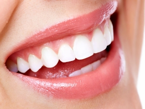 Eight Super Foods That Boost Dental Health