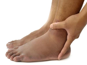 Surprising Reasons For Swollen Feet