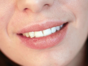 Your Lips Signify These Health Problems