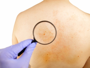 Why Are White Patches Present On Body?
