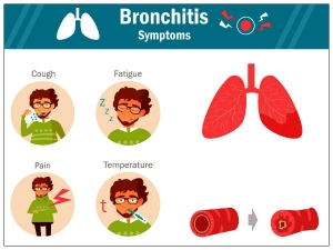 Curing Bronchitis Without Antibiotics