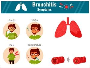 Curing Bronchitis Without Antibiotics