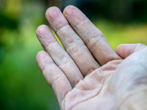 Dry Skin And Underlying Medical Conditions