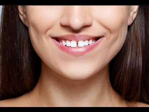 Is Gap In Your Front Two Teeth Considered To Be Lucky