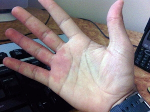 Causes For Numbness In Hands