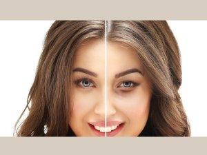 Effective Ways To Treat Dry Eyelids