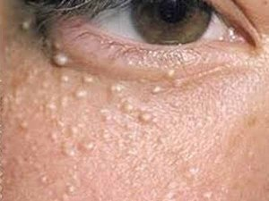 What Do Your Skin Patches Mean