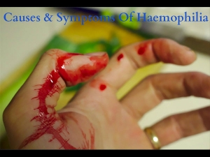 Causes And Symptoms Of Haemophilia