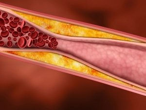 Eating Fruits Vegetables Daily May Cut Artery Disease