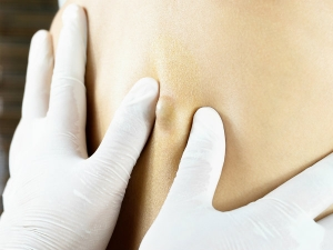 Top Home Remedies For Sebaceous Cyst Removal