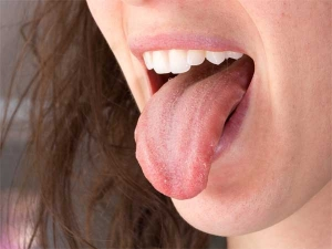 How Saliva Can Help Treat Pimples