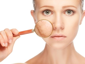 Natural Home Remedies For All Common And Critical Skin Problems