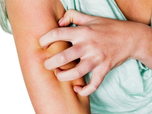 Signs Of Serious Diseases Signaled By Our Skin