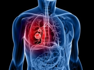 Lung Cancer Risk High Among Smokers With Hiv