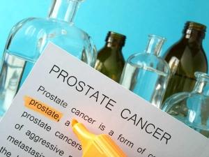 Ejaculation And Prostate Cancer