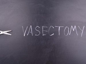 Facts About Vasectomy