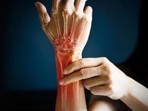 Arthritis Prevalence Rising Among Women Than Men