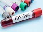 Risk Factors For Hiv Aids
