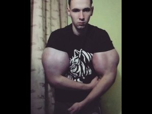 Russian Wannabe Bodybuilder Injects His Biceps With Oil