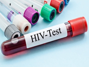 Facts On Aids To Know