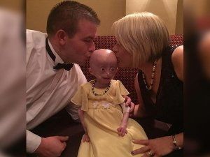 Lucy Parke Suffered From Rare Progeria Syndrome