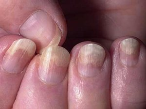 Get Rid Of Yellow Nails With These Home Remedies