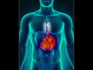 Medical Reasons You Shouldn T Ignore Acidity
